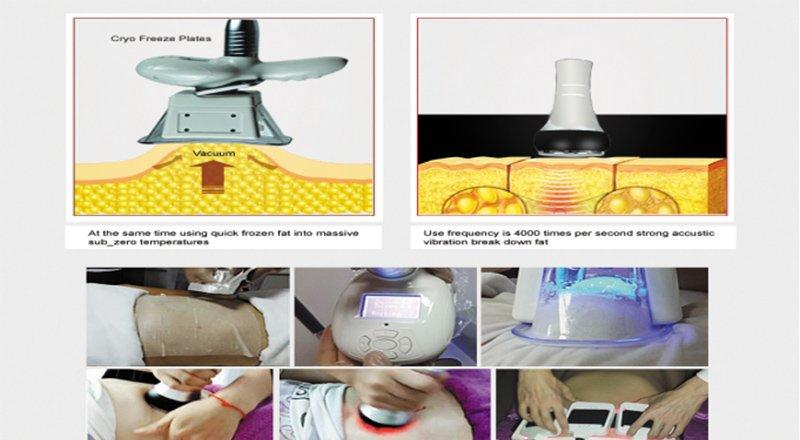 two cavitation cryolipolysis rf Vinly slimming machines suppliers
