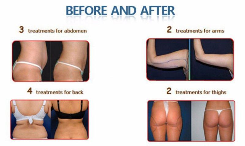whats laser lipo 14 slimming diode lipo laser Vinly Warranty
